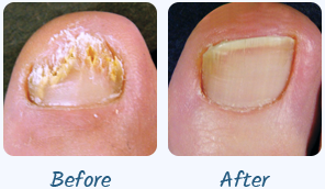 Funginix Nail Fungus Treatment � Cure Nail Fungus